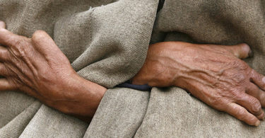 Se esfuerza México por eliminar la lepra
