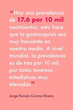 Gastrosquisis, el defecto congénito que desafía a la perinatología en México