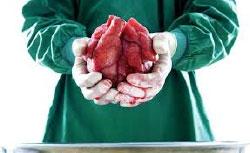 Insuficientes los trasplantes en el país; se resuelven 1 de cada 3 demandas