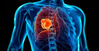 Crea IPN herramienta computacional para detectar cáncer de pulmón