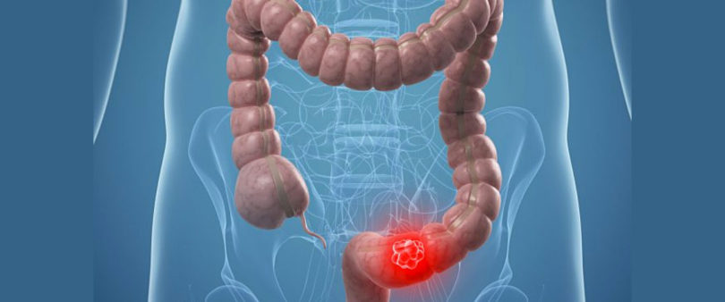Descubren que árnica tiene efecto tóxico contra cáncer de colon
